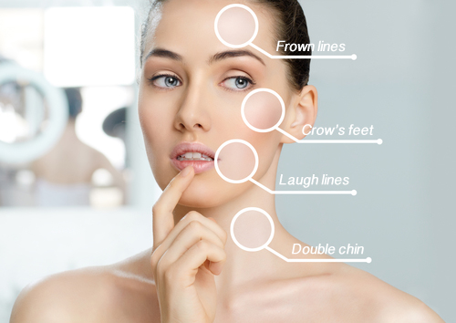 guide to facial lines that can be treated with Wheaton cosmetic injections