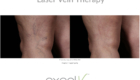 Wheaton laser-vein-therapy-before-and-after