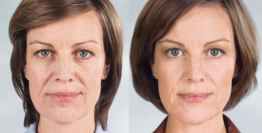 Wheaton sculptra before and after