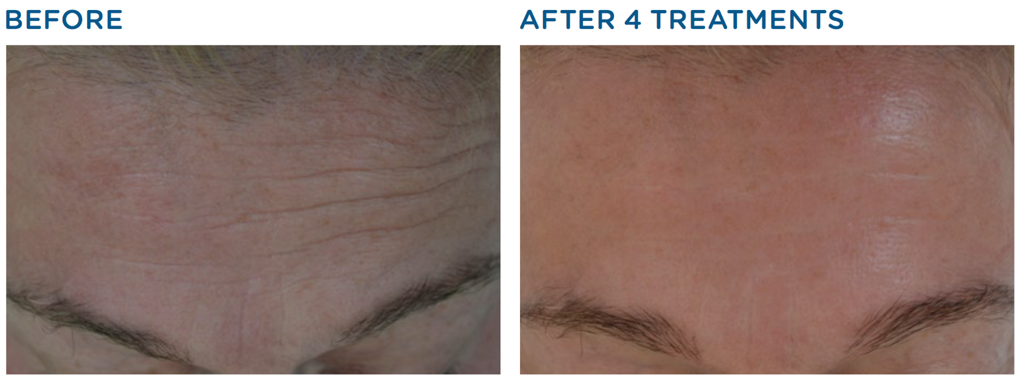 Exilis Ultra before and after
