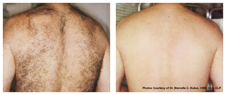 before and after Wheaton laser hair removal